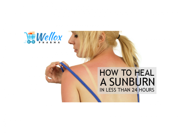 Effective Ways To Deal With Sunburn