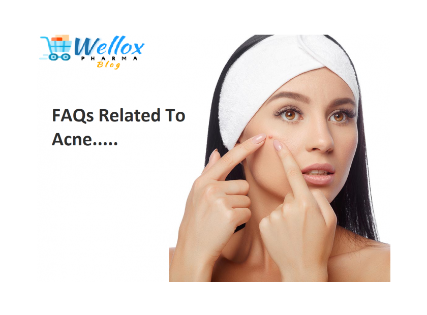 FAQs Related To Acne