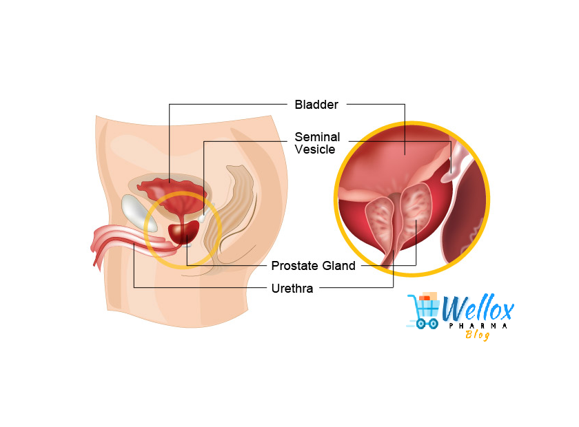 FAQs Related To Prostate Cancer