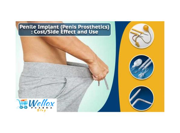 Penile Implant For Erectile Dysfunction