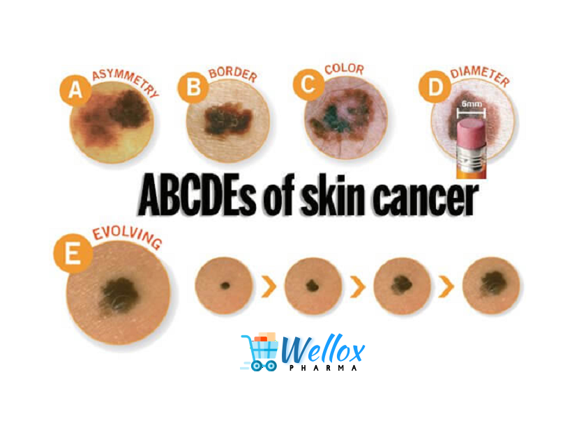 The Abcde Of Moles And Cancer
