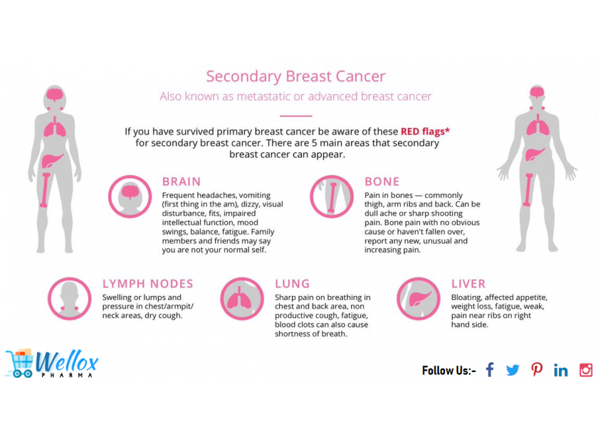 The Early Symptoms Of Breast Cancer